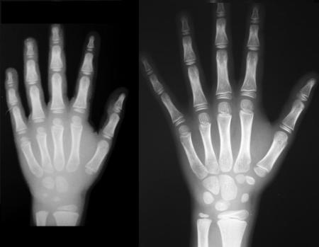 Metodi di datazione ossea